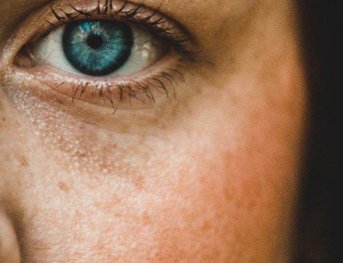 MANCHAS da pele – Posso tratar com o sol?