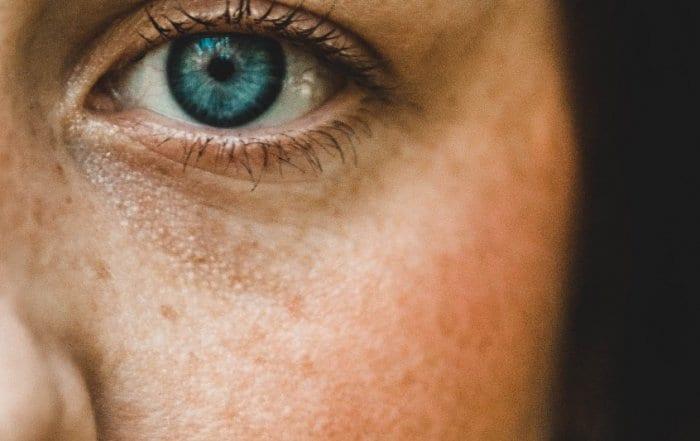 Tratamento anti-manchas de pele, mesmo no verão